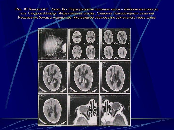 Рис. : КТ больной А. Е. , 4 мес. Д-з: Порок развития головного мозга