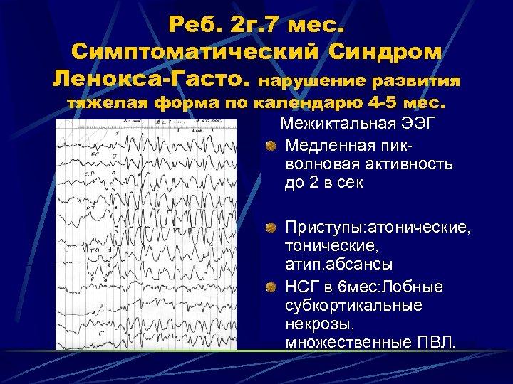 Реб. 2 г. 7 мес. Симптоматический Синдром Ленокса-Гасто. нарушение развития тяжелая форма по календарю