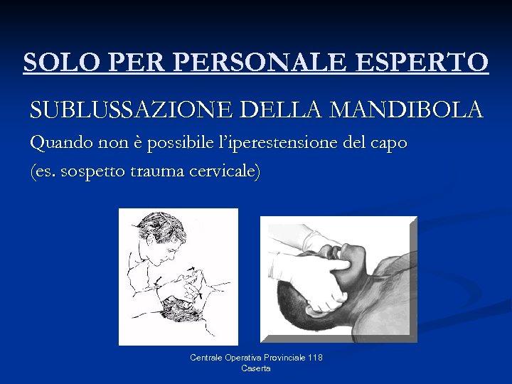 SOLO PERSONALE ESPERTO SUBLUSSAZIONE DELLA MANDIBOLA Quando non è possibile l'iperestensione del capo (es.