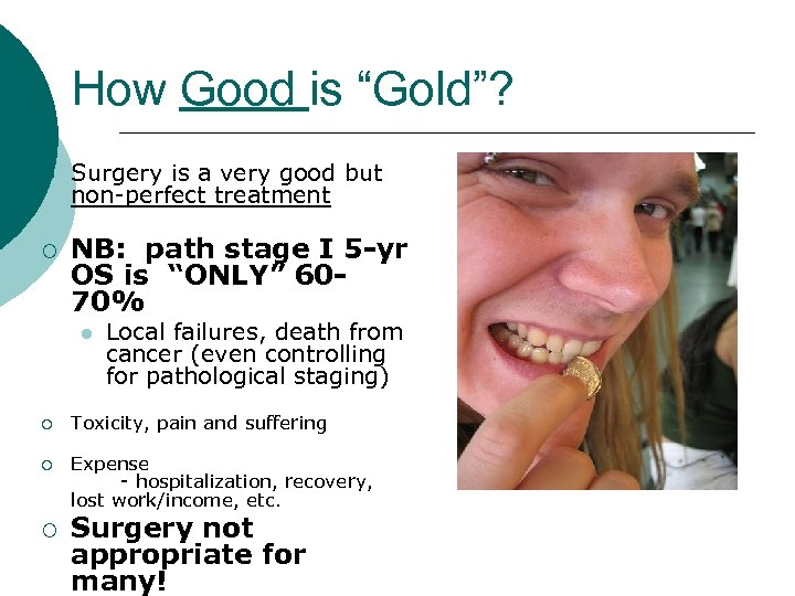 """How Good is """"Gold""""? ¡ ¡ Surgery is a very good but non-perfect treatment"""