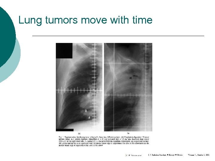 Lung tumors move with time