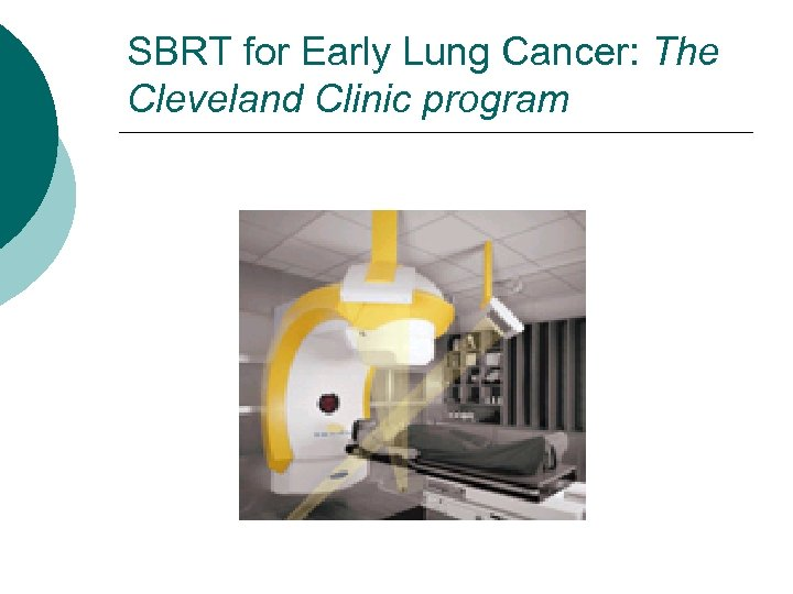 SBRT for Early Lung Cancer: The Cleveland Clinic program