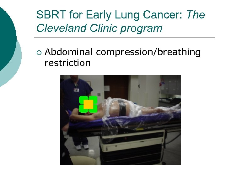 SBRT for Early Lung Cancer: The Cleveland Clinic program ¡ Abdominal compression/breathing restriction