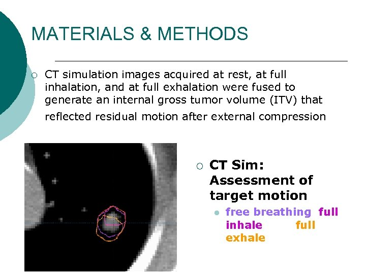 MATERIALS & METHODS ¡ CT simulation images acquired at rest, at full inhalation, and