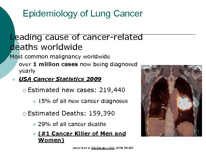 Epidemiology of Lung Cancer ¡ ¡ Leading cause of cancer-related deaths worldwide Most common