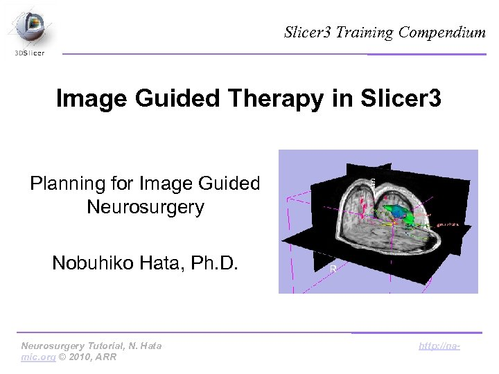 Slicer 3 Training Compendium Image Guided Therapy in Slicer 3 Planning for Image Guided