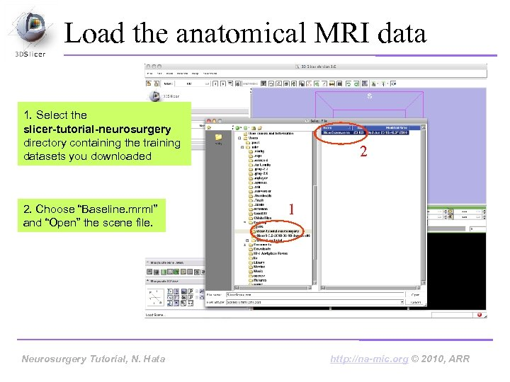 Load the anatomical MRI data 1. Select the slicer-tutorial-neurosurgery directory containing the training datasets