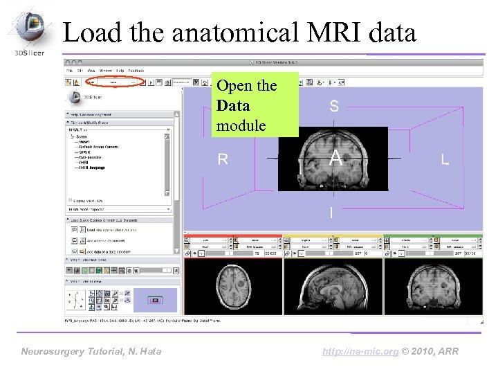 Load the anatomical MRI data Open the Data module Neurosurgery Tutorial, N. Hata http: