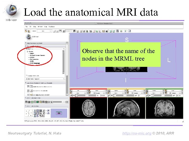 Load the anatomical MRI data Observe that the name of the nodes in the