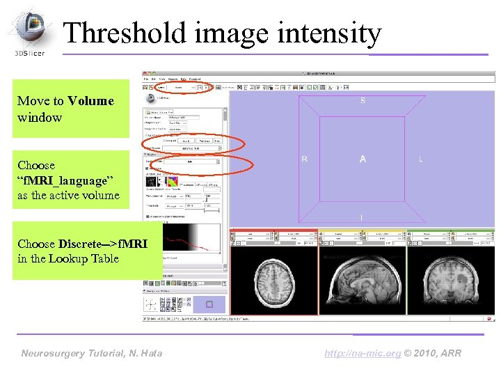 "Threshold image intensity Move to Volume window Choose ""f. MRI_language"" as the active volume"