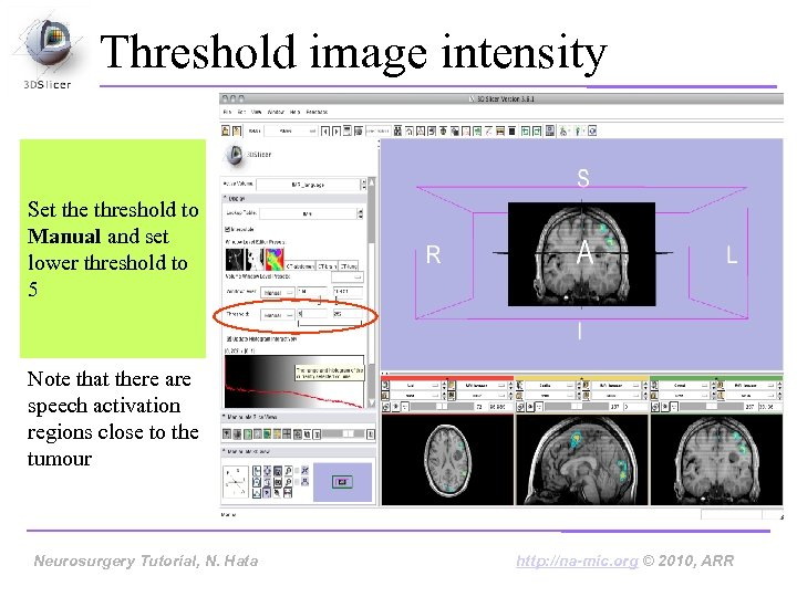 Threshold image intensity Set the threshold to Manual and set lower threshold to 5