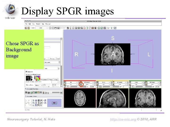 Display SPGR images Chose SPGR as Background image Neurosurgery Tutorial, Hata Neurosurgery Tutorial, N.