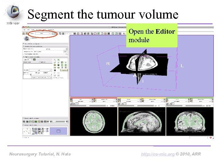 Segment the tumour volume Open the Editor module Neurosurgery Tutorial, Hata Neurosurgery Tutorial, N.