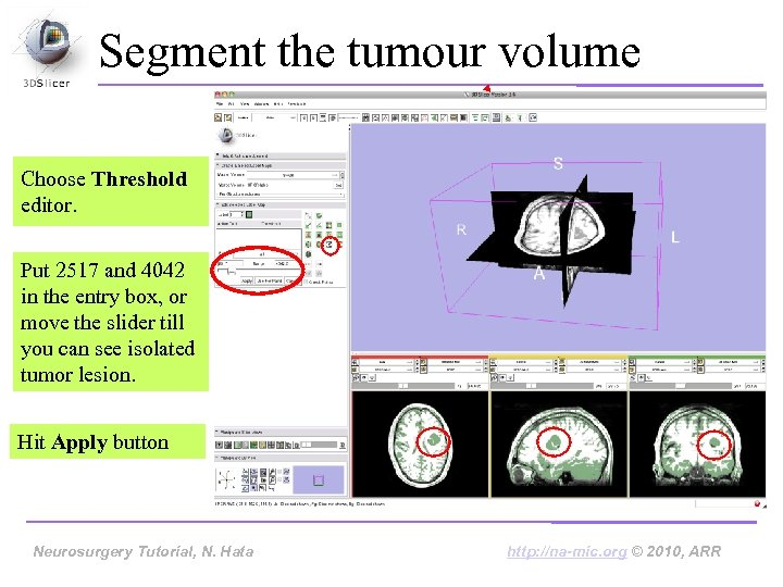 Segment the tumour volume Choose Threshold editor. Put 2517 and 4042 in the entry