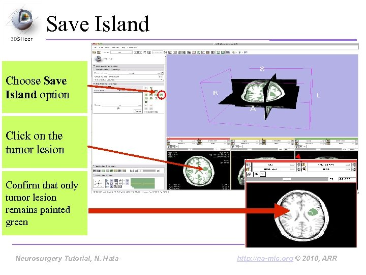 Save Island Choose Save Island option Click on the tumor lesion Confirm that only