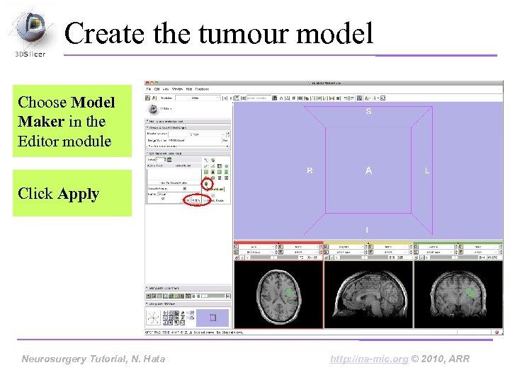 Create the tumour model Choose Model Maker in the Editor module Click Apply Neurosurgery