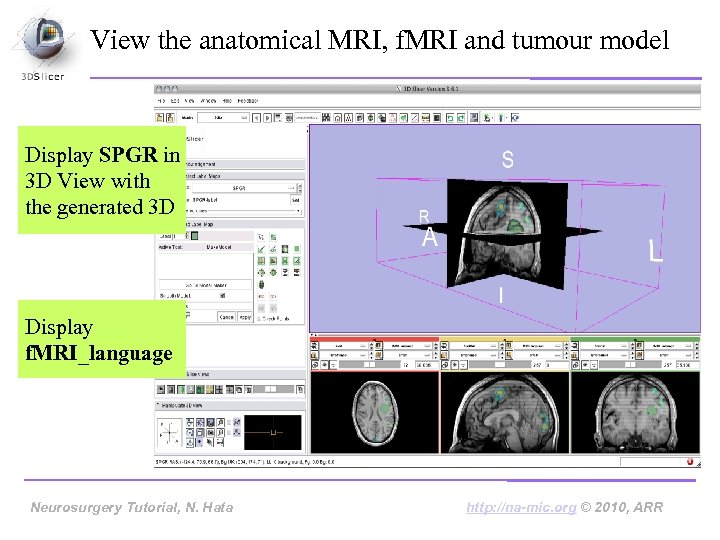 View the anatomical MRI, f. MRI and tumour model Display SPGR in 3 D