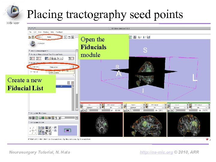 Placing tractography seed points Open the Fiducials module Create a new Fiducial List Neurosurgery
