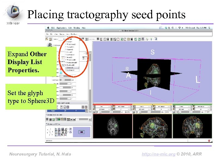 Placing tractography seed points Expand Other Display List Properties. Set the glyph type to