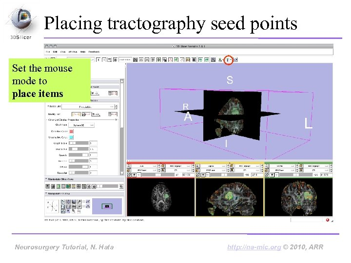 Placing tractography seed points Set the mouse mode to place items Neurosurgery Tutorial, Hata