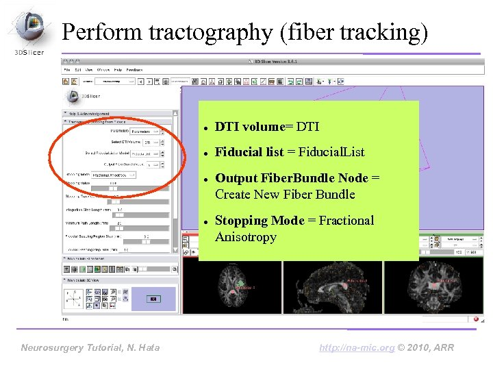 Perform tractography (fiber tracking) DTI volume= DTI Fiducial list = Fiducial. List Neurosurgery Tutorial,