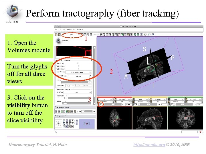 Perform tractography (fiber tracking) 1. Open the Volumes module 1 Turn the glyphs off