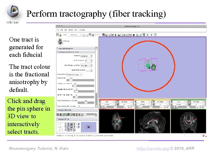 Perform tractography (fiber tracking) One tract is generated for each fiducial The tract colour