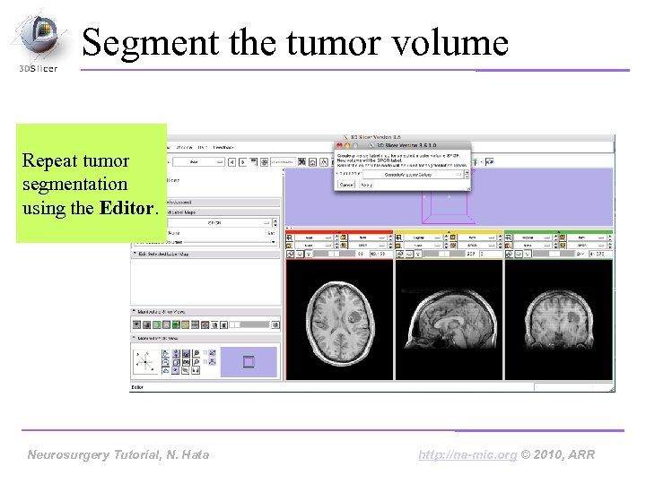 Segment the tumor volume Repeat tumor segmentation using the Editor. Neurosurgery Tutorial, Hata Neurosurgery
