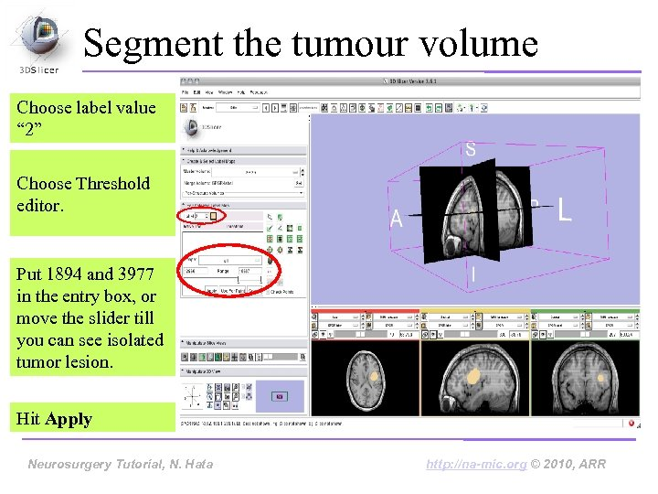"Segment the tumour volume Choose label value "" 2"" Choose Threshold editor. Put 1894"