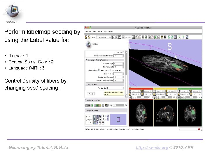 Perform labelmap seeding by using the Label value for: • Tumor : 1 •