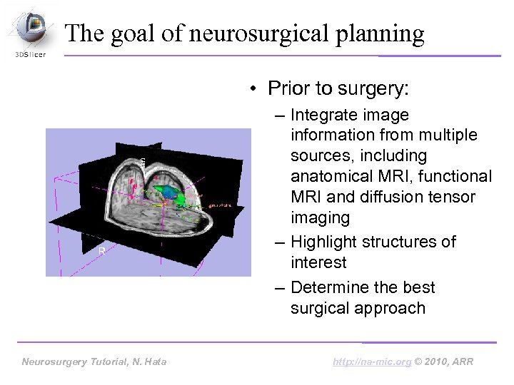 The goal of neurosurgical planning • Prior to surgery: – Integrate image information from