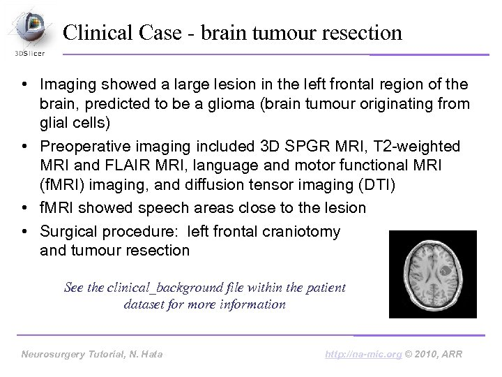 Clinical Case - brain tumour resection • Imaging showed a large lesion in the