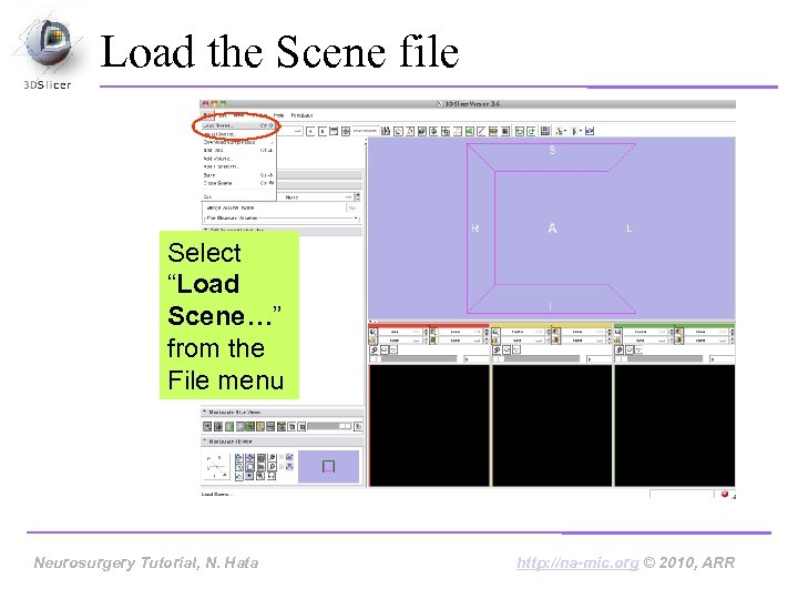 "Load the Scene file Select ""Load Scene…"" from the File menu Neurosurgery Tutorial, N."