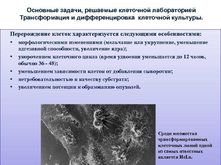 Основные задачи, решаемые клеточной лабораторией Трансформация и дифференцировка клеточной культуры. Перерождение клеток характеризуется следующими