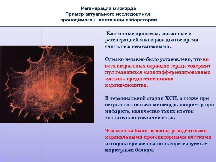 Регенерация миокарда Пример актуального исследования, проводимого в клеточной лаборатории Клеточные процессы, связанные с регенерацией