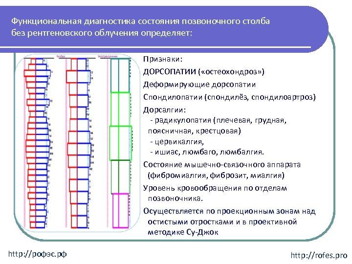 Функциональная диагностика состояния позвоночного столба без рентгеновского облучения определяет: Признаки: ДОРСОПАТИИ ( «остеохондроз» )