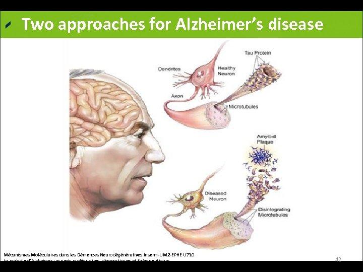 Two approaches for Alzheimer's disease Mécanismes Moléculaires dans les Démences Neurodégénératives Inserm-UM 2 -EPHE