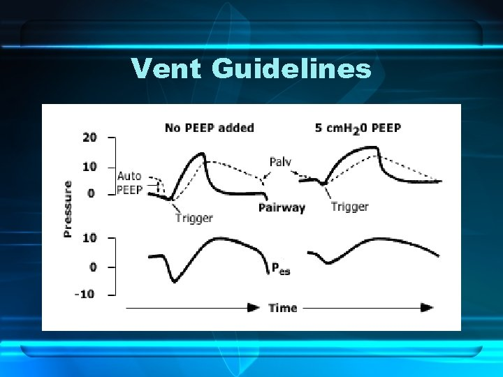 Vent Guidelines