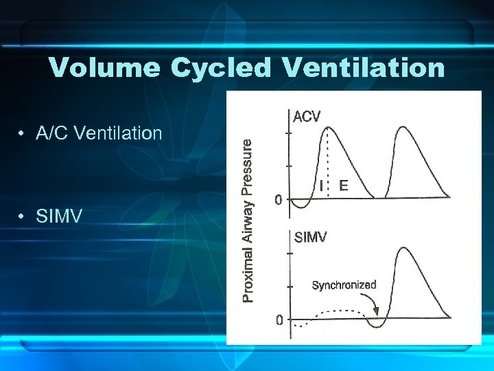 Volume Cycled Ventilation • A/C Ventilation • SIMV