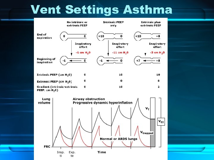 Vent Settings Asthma