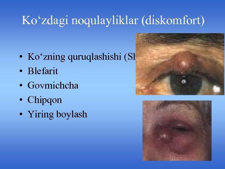 Ko'zdagi noqulayliklar (diskomfort) • • • Ko'zning quruqlashishi (Shegren sindromi) Blefarit Govmichcha Chipqon Yiring