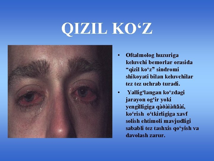 """QIZIL KO'Z • Oftalmolog huzuriga keluvchi bemorlar orasida """"qizil ko'z"""" sindromi shikoyati bilan keluvchilar"""