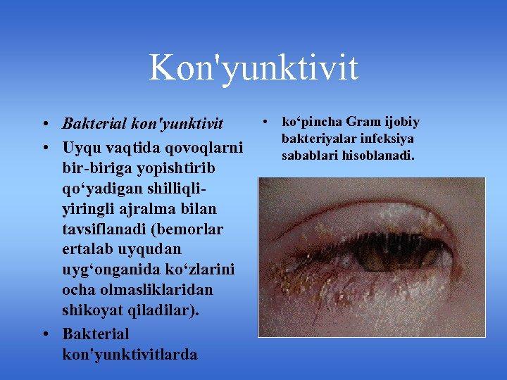 Kon'yunktivit • Bakterial kon'yunktivit • Uyqu vaqtida qovoqlarni bir-biriga yopishtirib qo'yadigan shilliqliyiringli ajralma bilan