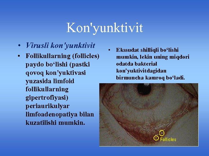 Kon'yunktivit • Virusli kon'yunktivit • Follikullarning (follicles) paydo bo'lishi (pastki qovoq kon'yuktivasi yuzasida limfoid