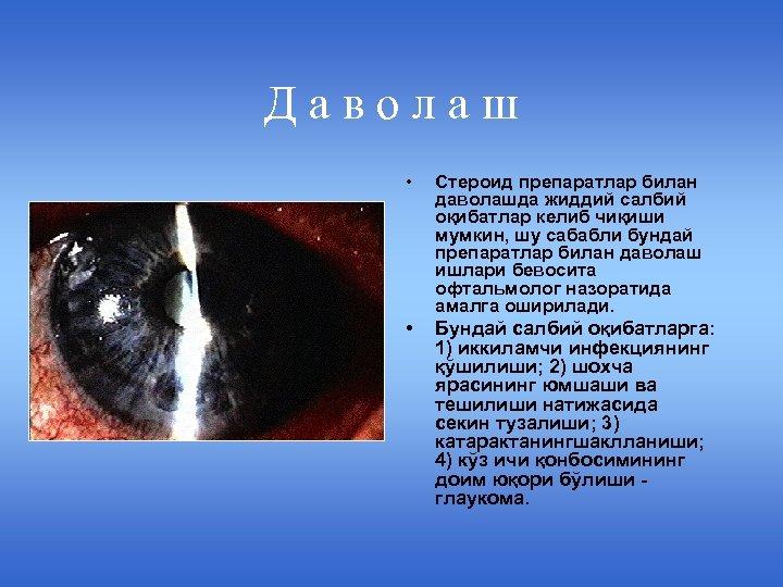 Даволаш • Стероид препаратлар билан даволашда жиддий салбий оқибатлар келиб чиқиши мумкин, шу сабабли