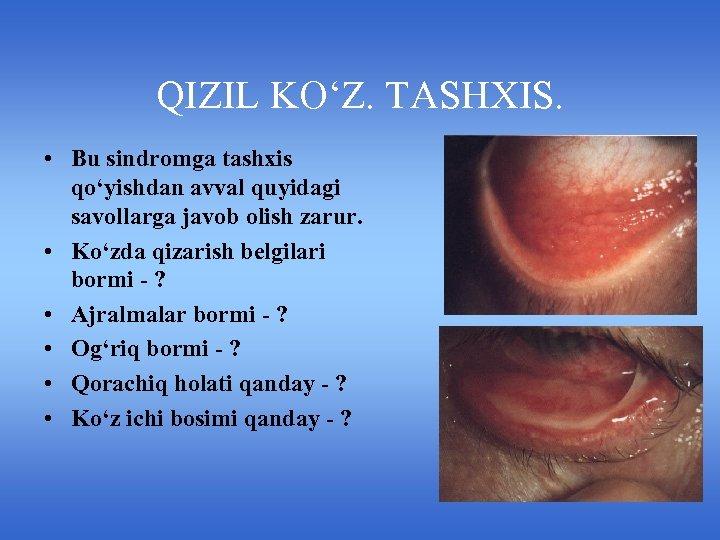 QIZIL KO'Z. TASHXIS. • Bu sindromga tashxis qo'yishdan avval quyidagi savollarga javob olish zarur.