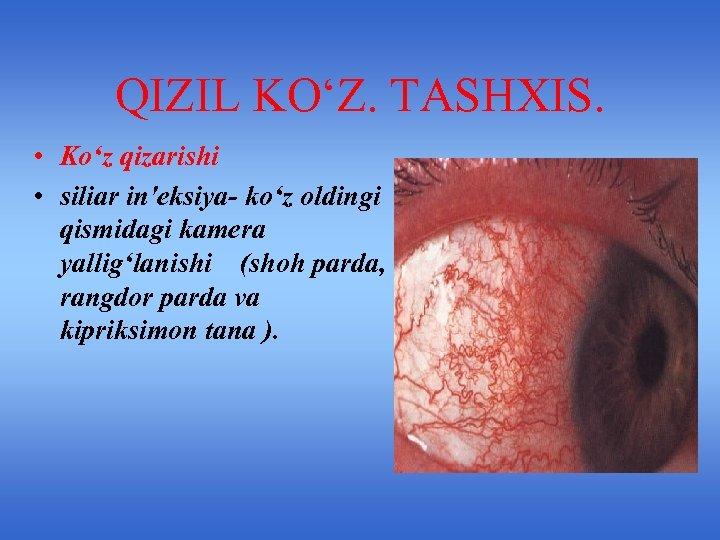 QIZIL KO'Z. TASHXIS. • Ko'z qizarishi • siliar in'eksiya- ko'z oldingi qismidagi kamera yallig'lanishi