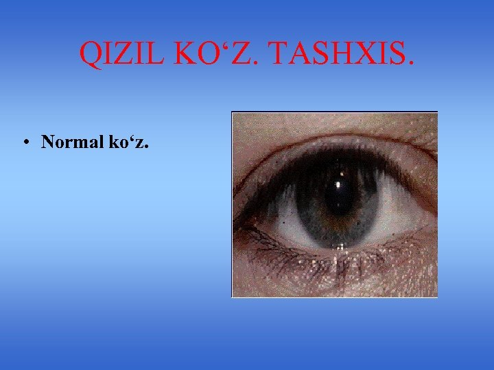 QIZIL KO'Z. TASHXIS. • Normal ko'z.