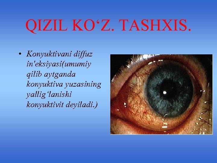 QIZIL KO'Z. TASHXIS. • Konyuktivani diffuz in'eksiyasi(umumiy qilib aytganda konyuktiva yuzasining yallig'lanishi konyuktivit deyiladi.