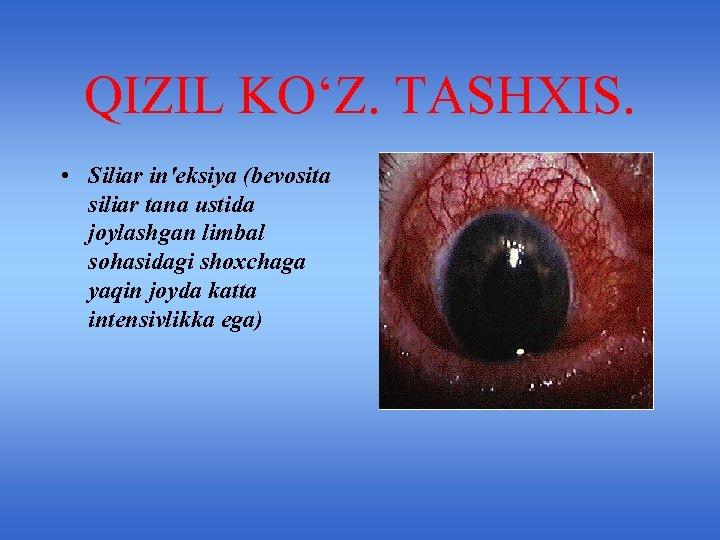 QIZIL KO'Z. TASHXIS. • Siliar in'eksiya (bevosita siliar tana ustida joylashgan limbal sohasidagi shoxchaga